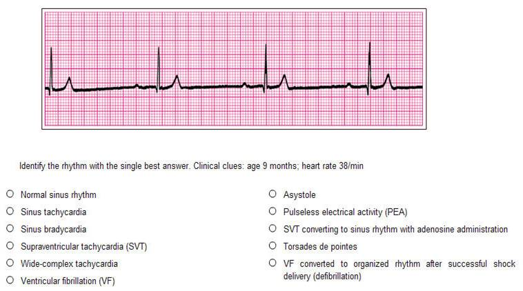 Acls Pretest 2013 Answer Key | Manual Guide